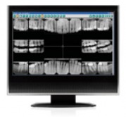 Preventive Dentistry - Dexis Digital X-rays